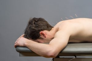 Spring Houston Acupuncture